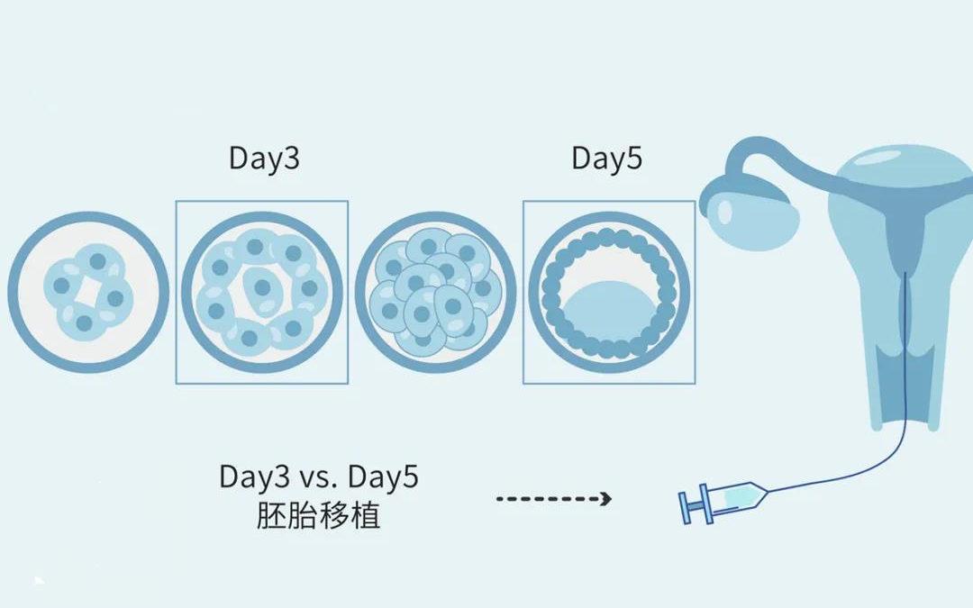 冷冻胚胎移植的好处有哪些?